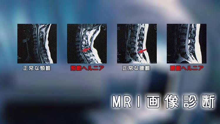MRI画像診断検査